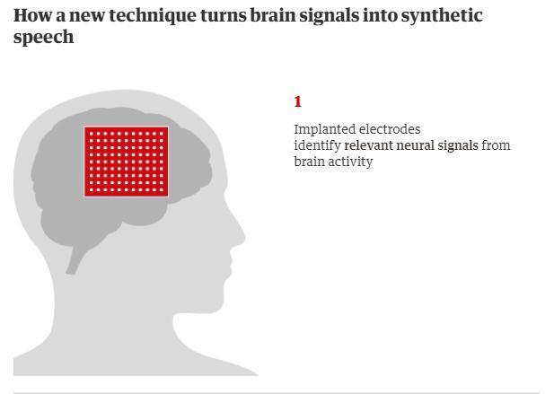 美科学家研发新技术可读取人想说的话 帕金森患者等或可受益