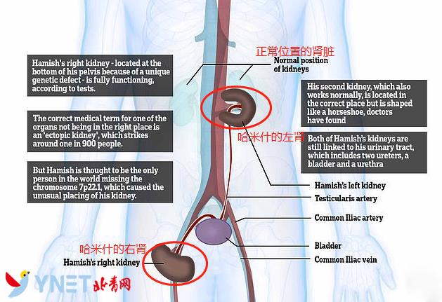 胡姓女宝宝名字英国10岁男孩肾脏长在大腿上 稀有基因病以他定名