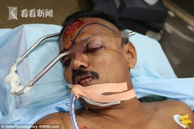 男子遇车祸钢棒插颅左额穿出 医生妙手救命保目