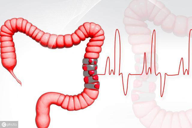 最新研究:部分植物性饮食或地中海式饮食食物改善肠道减少炎症