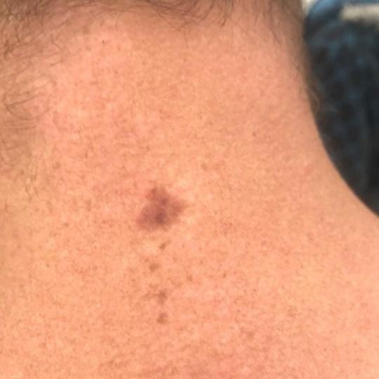 小雀斑竟是黑色素瘤,澳洲男做皮肤检查救一命,被迫切除大片皮肤