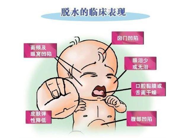 小婴儿发烧、呕吐、腹泻、便秘,能多喝水吗?