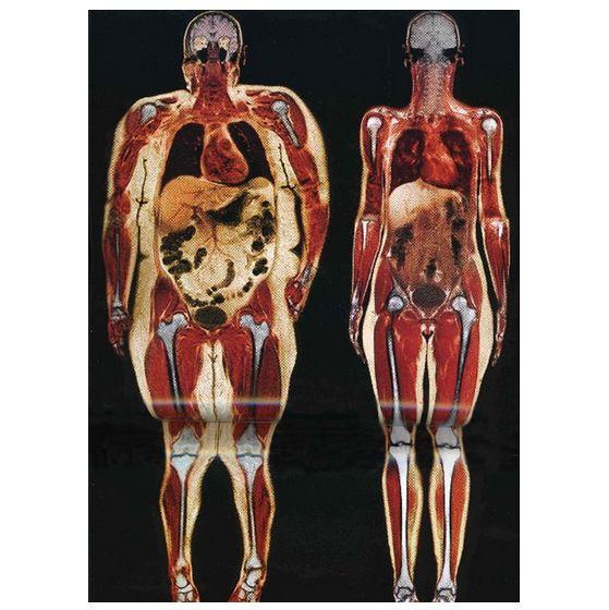 如何减脂肪_【健康广西】月减xx斤,你今年的减肥计划进展如何