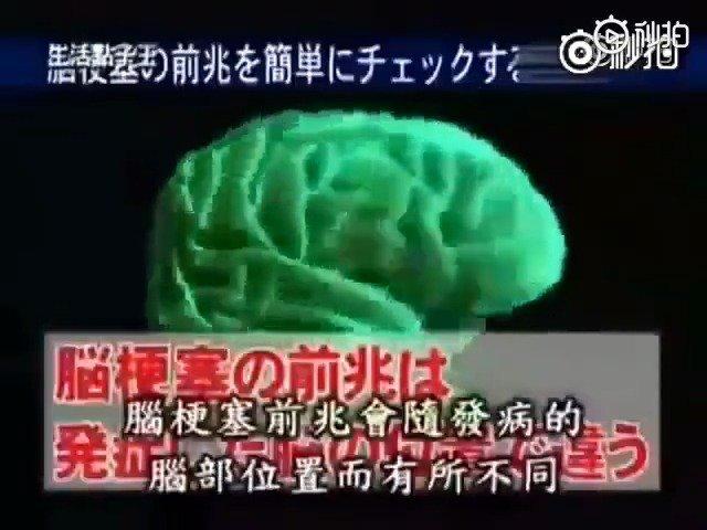 涨姿势!!!岛国专家亲自告诉你:如何自行判断脑梗塞前兆??好流