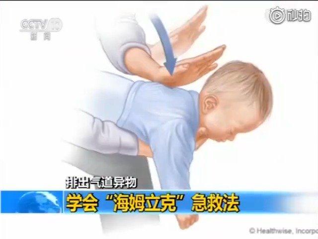 """6岁孩子吃花生被噎身亡 学会""""海姆立克""""急救法 关键时刻能救命"""