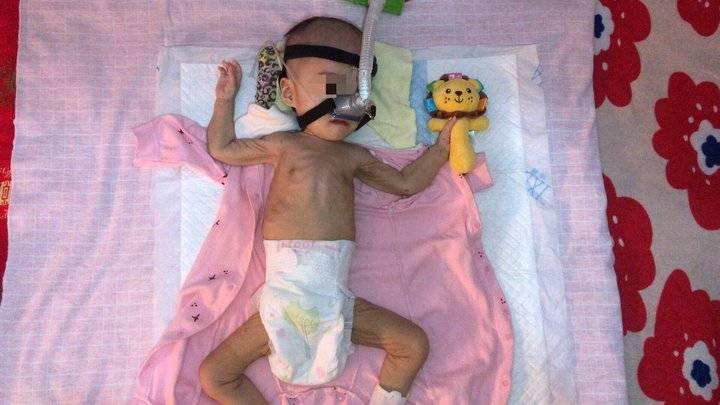 临沂一岁患病女童体重仅9斤 高昂医药费还差30万