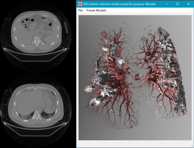 左侧是传统的胸部CT图像,右侧是北大高真实感体渲染技术对CT图像集的高真实感可视化 图片来自北大新闻网