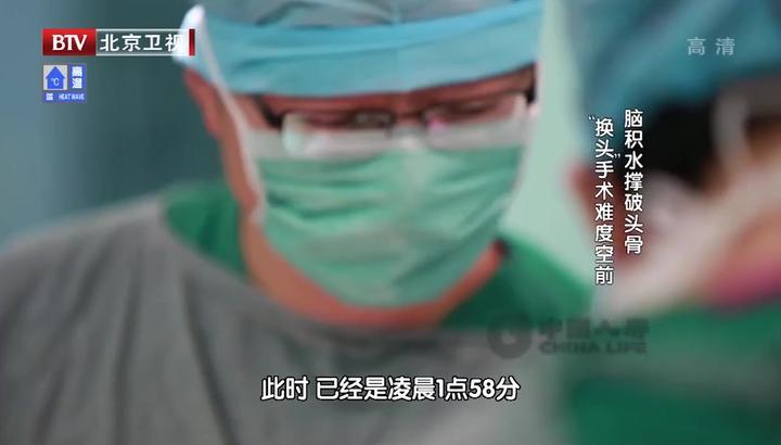 换头4:女童挺过了手术,却在ICU里出了事,术后突发高烧|生命缘