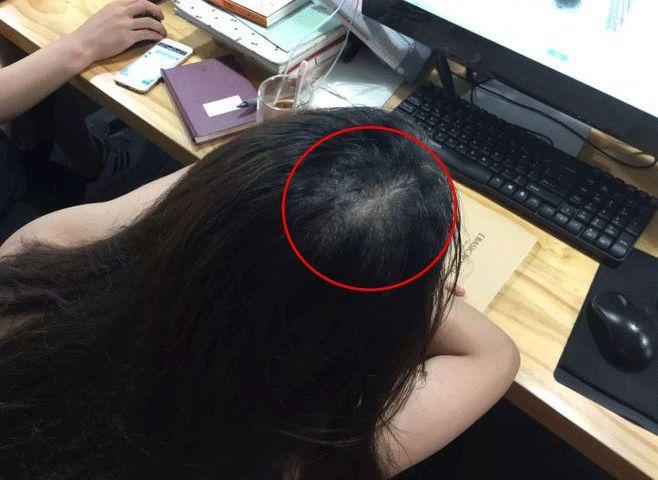 秋冬用它洗洗头,不出半月长出新发,浓密乌黑!皮皮虾的皮一下图片