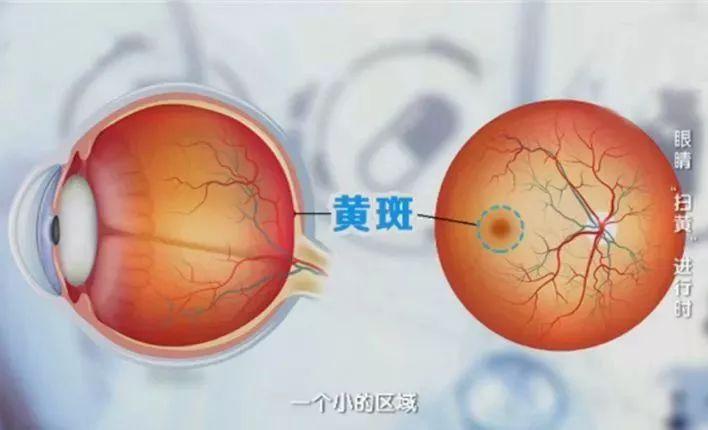 眼睛易疲劳、视力下降?小心是这种致盲疾病的前兆,一招帮你缓解!