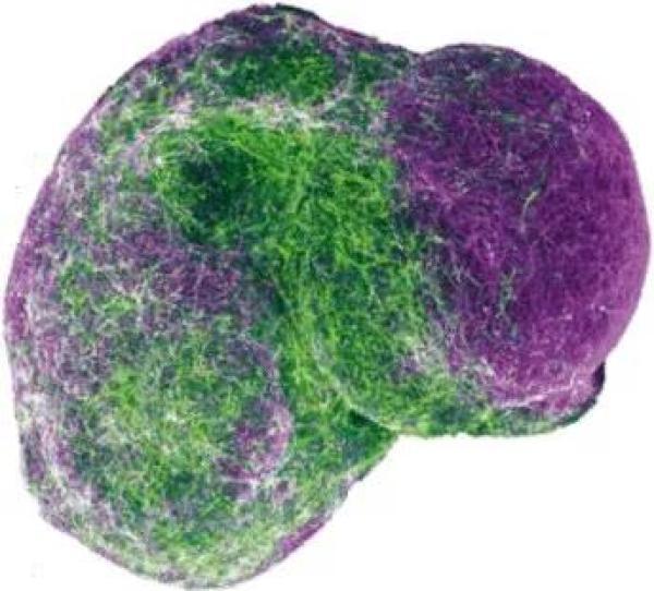 干细胞衍生的3D人脑组合图。