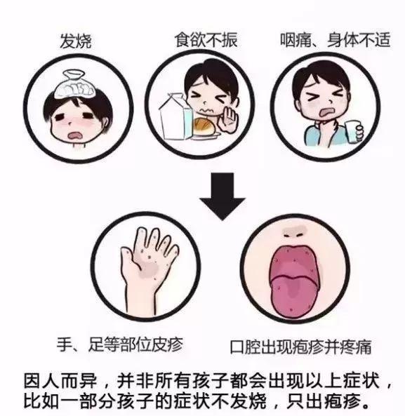 手足口病进入高发期 幼儿园是好发场所