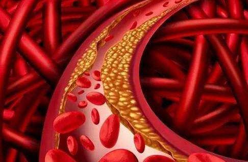 人到中年难免血管堵塞,喝红酒、吃醋泡黑豆管用吗?营养师辟谣