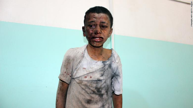 也门空袭事件致40名儿童死亡 美媒:弹药或来自美国