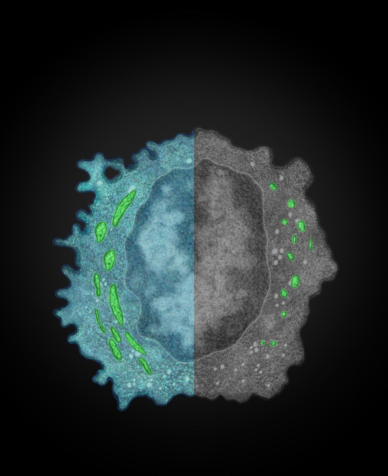 中国科大发现肝脏肿瘤逃脱自然杀伤细胞免疫监视的新机制