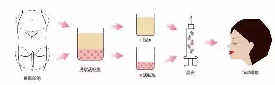 人体脂肪_医美 正文    提取人体多余的脂肪经过纯化处理后得到自体脂肪颗粒