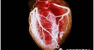 女性心脏健康