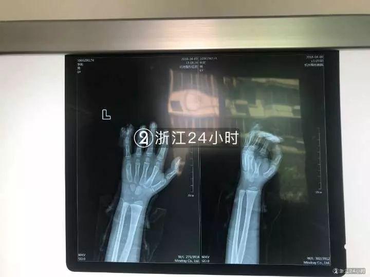 男孩被夹断手指祸首是校服 这个习惯很多孩子都有新巴黎中文社区