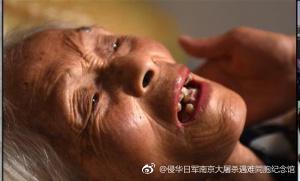 病卧在床的顾秀兰。图片来源:侵华日军南京大屠杀遇难同胞纪念馆官方微博 。