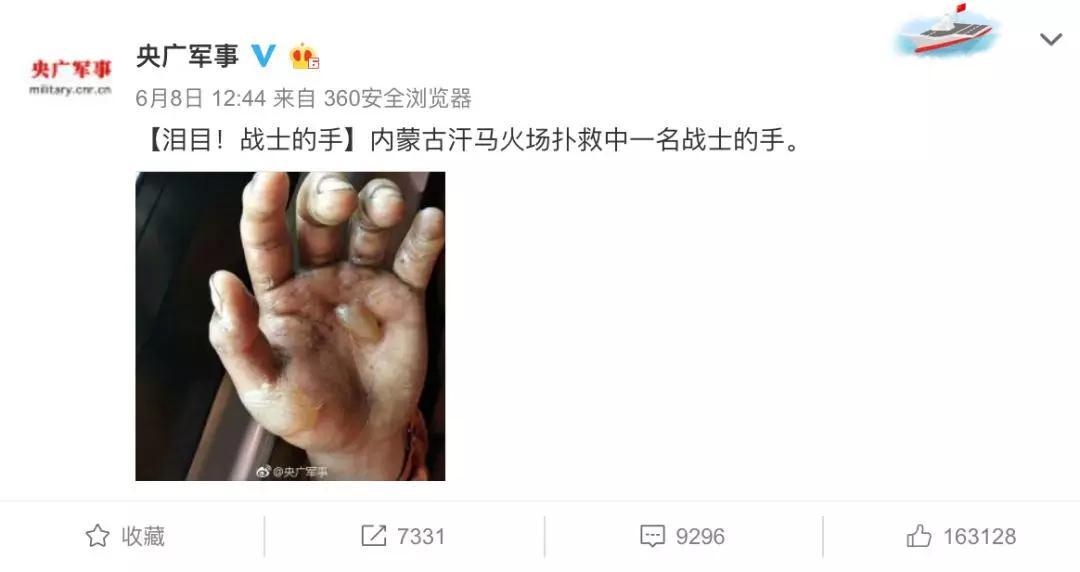 这只手的照片让16万网友点赞 无数人留言心疼
