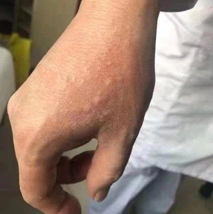 发热门诊护士的手怎么这样了?真相让人泪目