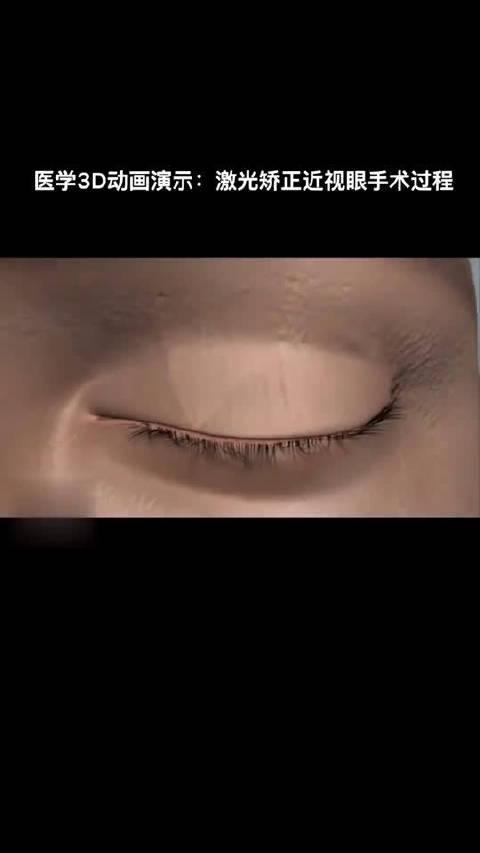 医学3D动画演示:激光矫正近视手术   热门视频合集搞笑