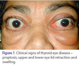 甲状腺眼病创新疗法!IGF-1R靶向单抗teprotumumab验证性III期临床获得成功