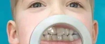 家长注意:必须在12岁前处理的10种儿童牙颌畸形!