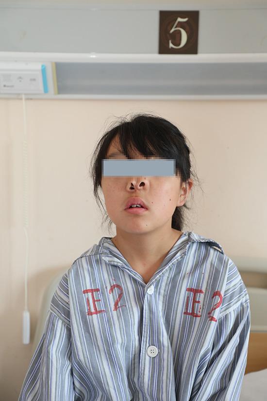 """小梅术前鼻子呈""""三鼻孔""""状。奚荣佩 摄"""