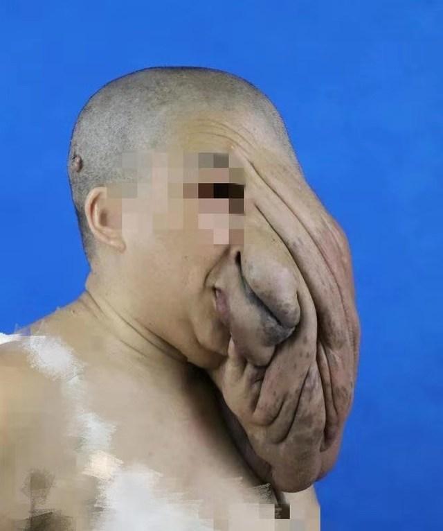 上海九院整复外科团队摘除女子面部10公斤罕见肿瘤
