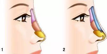 精致的鼻子