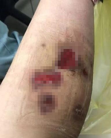 杭州瘦脸打女子针后皮肤溃烂险截肢,排查数月瘦腿针2个月还会瘦图片