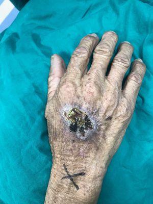 额头长老年斑怎么治疗方法 为什么额头上长了一个圆形的老年斑