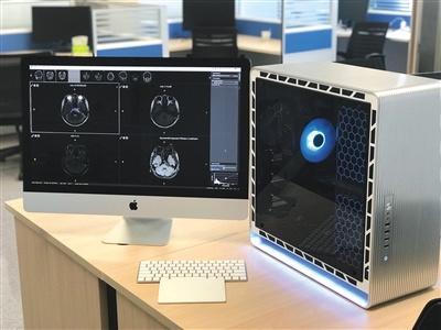 """近日,北京天坛医院,即将接受挑战的全球首款CT、MRI神经影像人工智能辅助诊断产品""""BioMindTM""""天医智。 本版供图/天坛医院"""