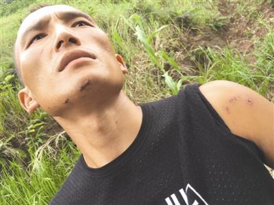 杨伟下巴和左手臂被咬的伤痕