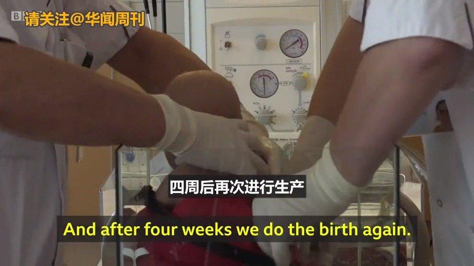 """Video 早产儿可在""""母体""""环境下成长!人造子宫或将实现"""