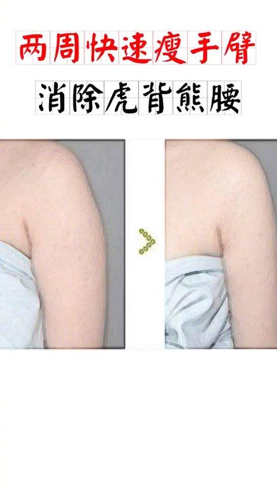 这几个动作能让你快速瘦手臂,消除虎背熊腰