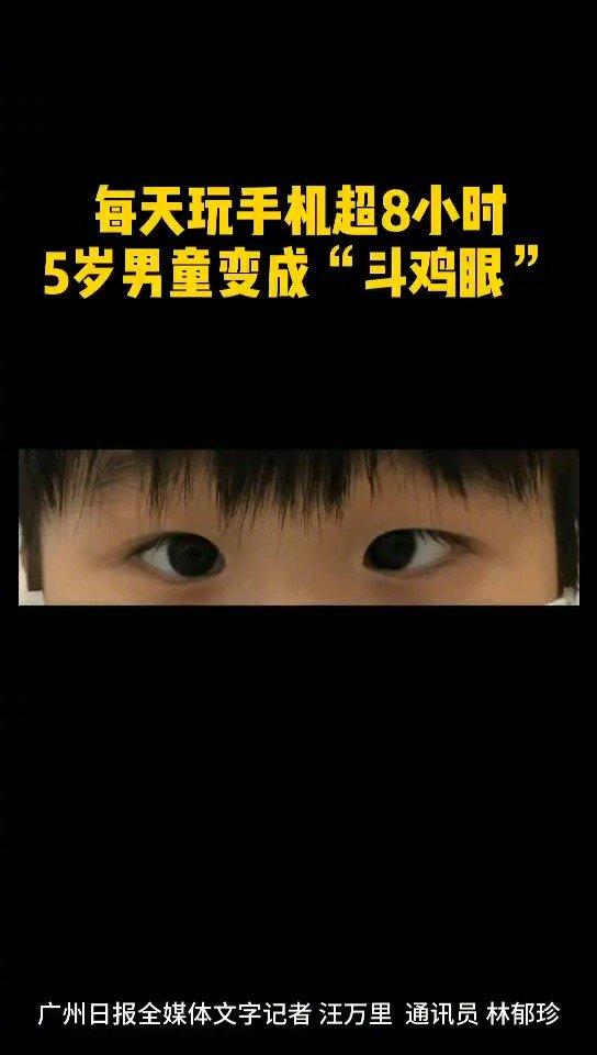 5岁男童每天玩手机超8小时成斗鸡眼