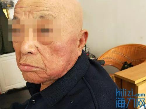 (老人两侧脸颊有明显红肿。)