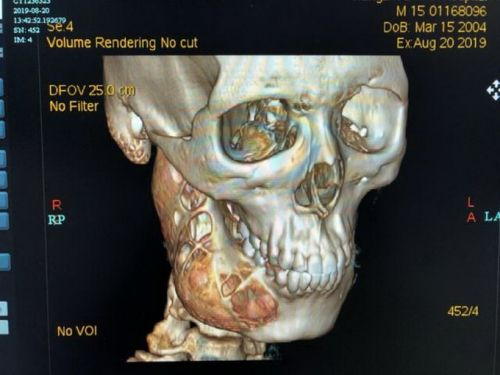 """15岁少年牙齿隐隐作痛没当回事,结果脸部骨骼被""""吃""""掉一半"""