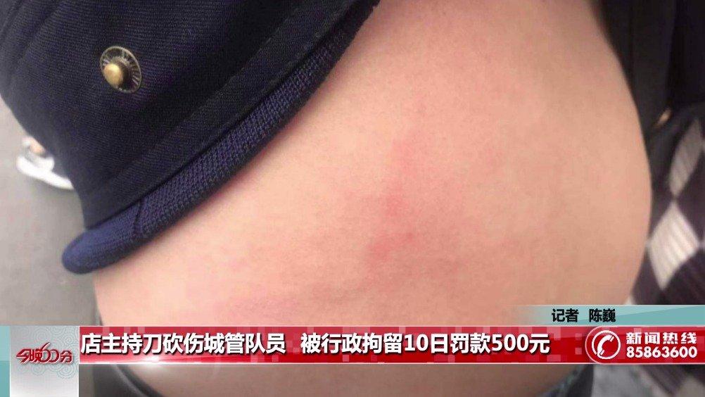 店主持刀砍伤城管队员   被行政拘留10日罚款500元
