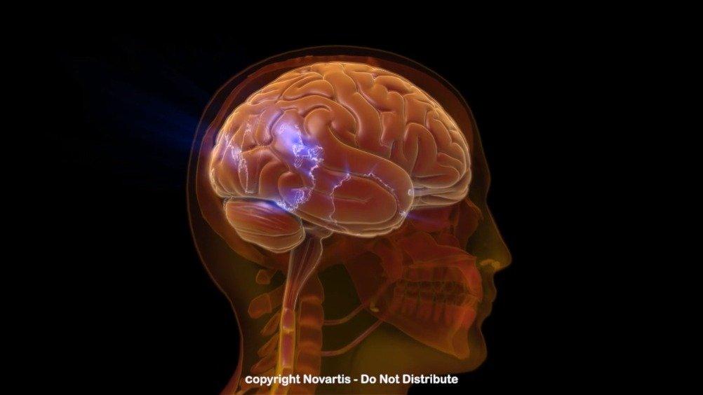 这段视频向我们展示了偏头痛发作的过程
