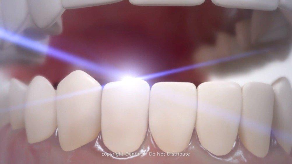 羟基磷灰石纳米颗粒如何起到增白牙齿珐琅质的作用