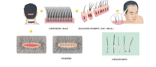 毛囊单位提取技术