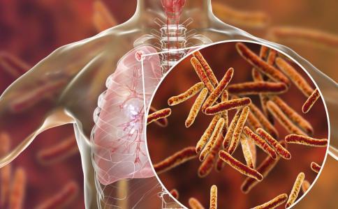 结核菌早发现早治疗很重要 结核病是一种什么病