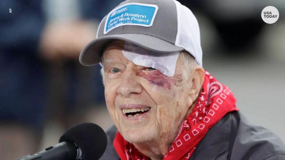 前总统跌倒至颅内出血 近况追踪