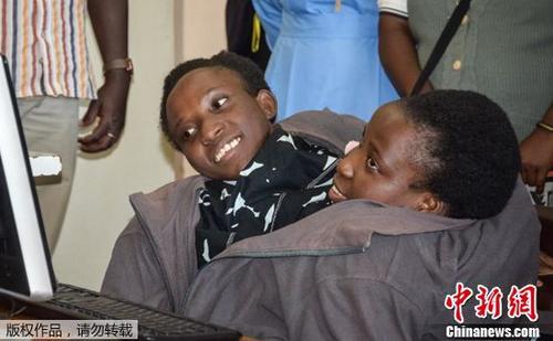 世界知名的坦桑尼亚连体婴姐妹近日因呼吸道并发症死亡。