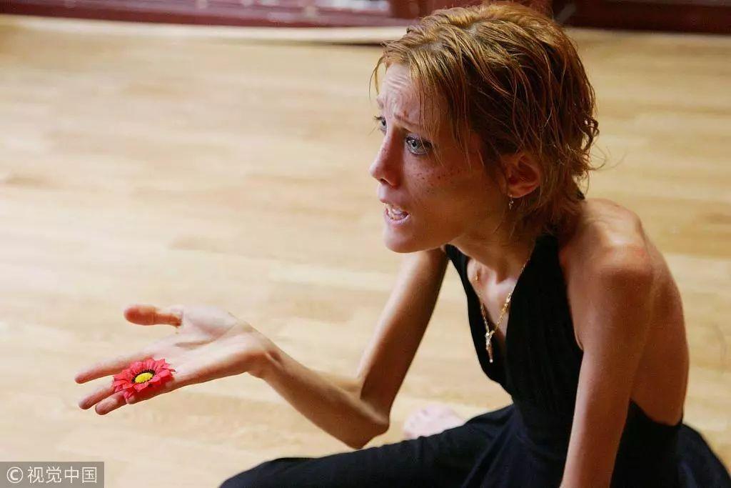 患厌食症的法国女模伊莎贝尔·卡罗。图片来自网络