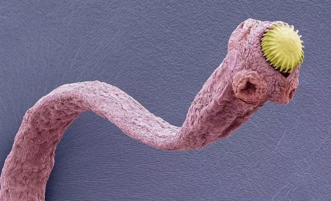 女子乳房中取出一条白色绦虫!竟是因为5年前她