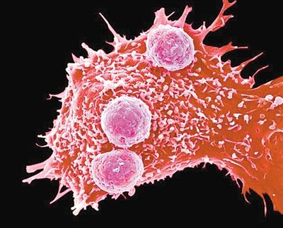 美国首例CRISPR抗癌人体试验即将开展